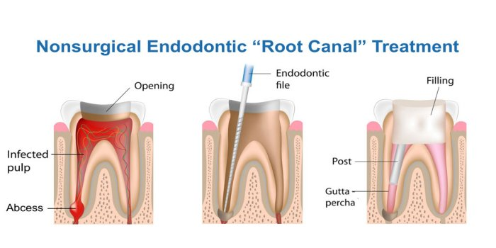 h_Endodontic-Root-Canal-Treatment_700